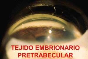 TEJIDO EMBRIONARIO PRETRABECULAR