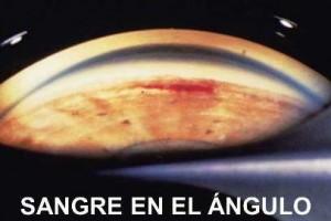 SANGRE EN EL ÁNGULO
