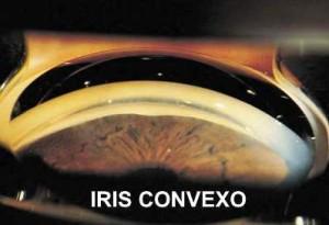 IRIS CONVEXO