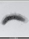 2019 04 15 cholera1916
