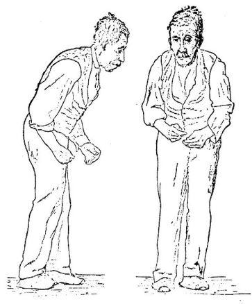 Sir William Richard Gowers Parkinson Disease sketch 1886