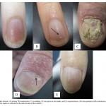 artritis psoriasica 2