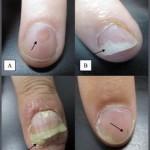 onicolisis en la artritis psoriasica