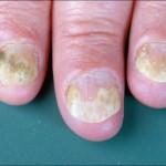 psoriasis ungüeal
