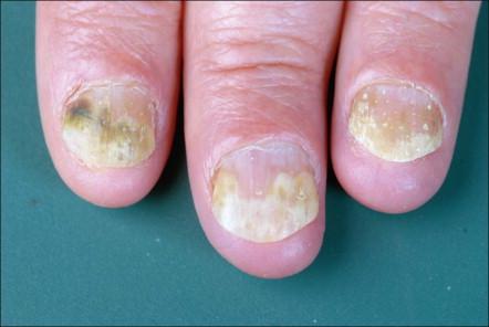 Onicolisis en la artropatía psoriásica