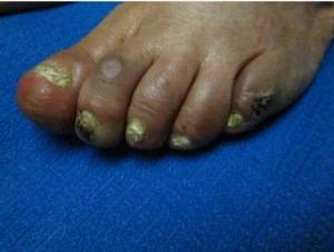 Dactilitis del 2do y 3er dedo