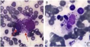 Histiocito con citoplasma vacuolado fagocitando una célula hematopoyética