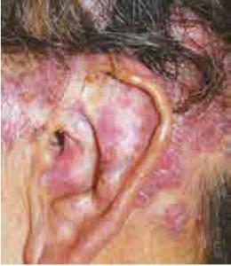 lupus cutáneo localizado