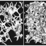 Imágenes de microtomografía computarizada del hueso trabecular de una vértebra en un sujeto con osteoporosis (izquierda) y en una mujer sana de la misma edad (derecha).