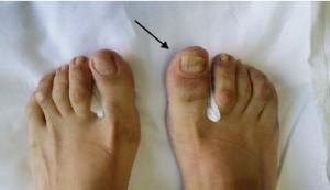 Falange de marfil: un hallazgo específico y poco conocido en artritispsoriásica