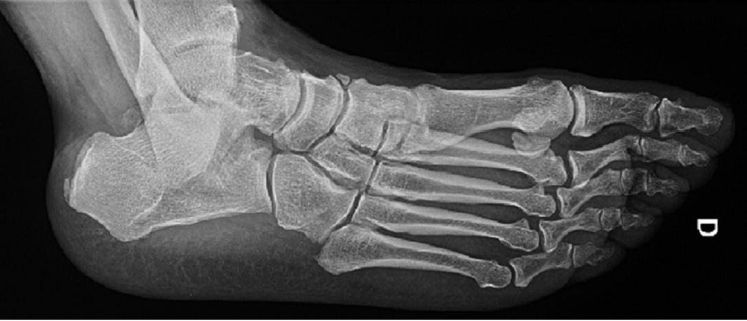 Síndrome del hueso trígono ( os trigonum )