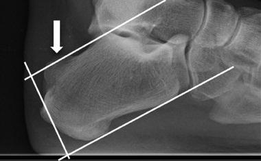 Tratamiento artroscopico en condromatosis sinovial primaria de hombro y corredera bicipital. reporte de un caso